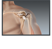 Total Shoulder Replacement - Texarkana Orthopedics