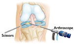 Arthroscopic