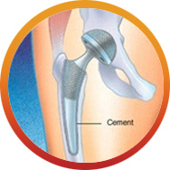 Cemented Hip
